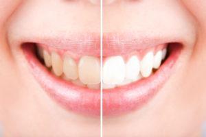 差し歯はホワイトニングできない?どう対処すればいいの?
