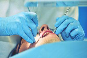いつまで銀歯でいますか?詰め物を銀歯からセラミックにするメリット4選