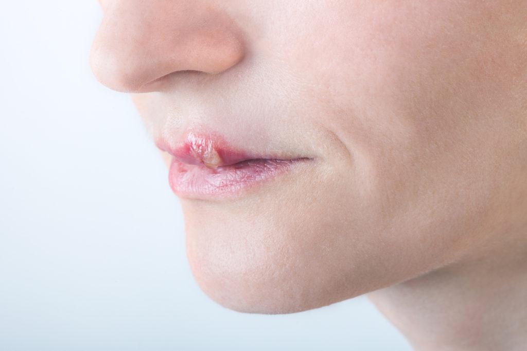 口唇ヘルペスはうつる!感染経路・受診するべき病院・予防法を