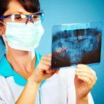 埋伏歯の抜歯が必要なのはどんな時?費用と治療後のケアまとめ