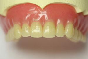 歯茎が黒いのはなぜ?4つの原因と治療法まとめ