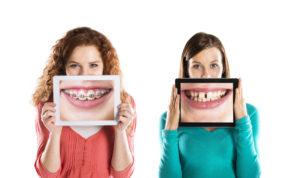 歯が汚い女性は恋愛に不利?美しい歯をつくるには