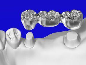 歯のブリッジのメリット・デメリットとは?歯が抜けた時の治療法検討の参考に