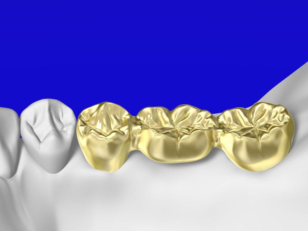 金銀パラジウム合金のブリッジ