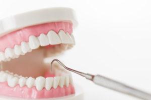 銀 歯 し みる