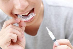 【大阪市鶴見区でホワイトニング】夜間診療対応の歯医者さん!料金表も掲載