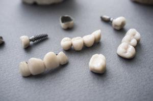 詰め物・被せ物など人工の歯!どんな種類がある?選び方は予算や見た目?